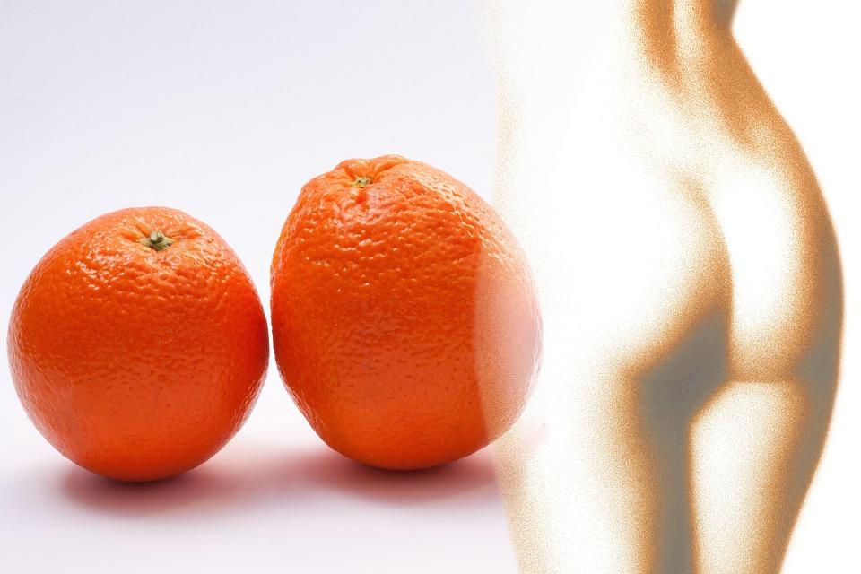 tratamiento del sobrepeso y la celulitis