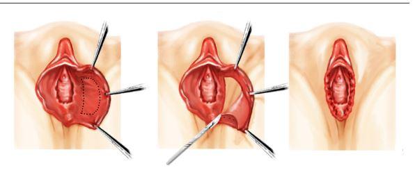 labioplastia.