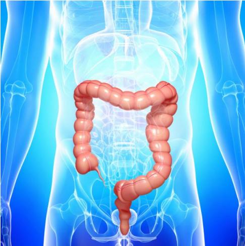 sintomas de polipos en el colon